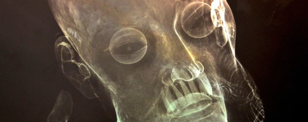 A 300-Year-Old Mexican Jesus Statue Has Real Human Teeth, X-Rays Show