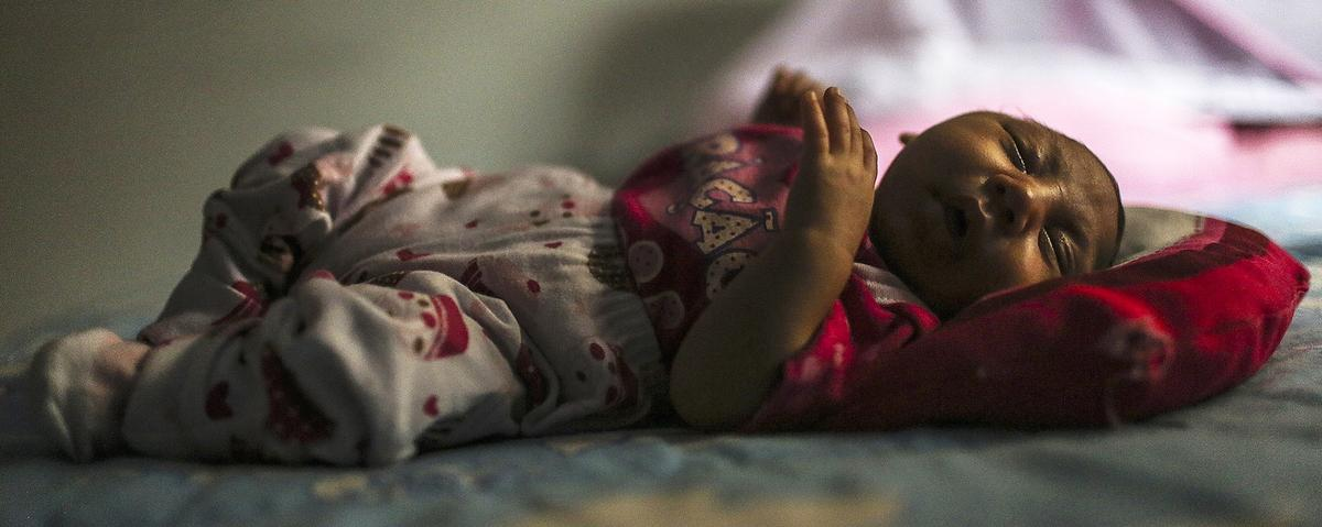 The CDC Is Now Certain That Zika Virus Causes Microcephaly and Other Severe Birth Defects